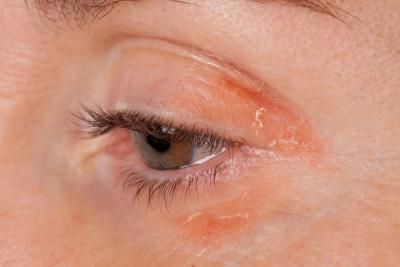 кальций от аллергии на солнце