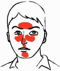 Как вылечить подкожный клещ на лице