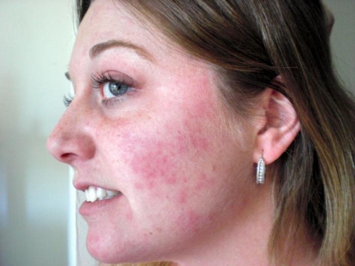 Симптомы подкожного клеща на лице