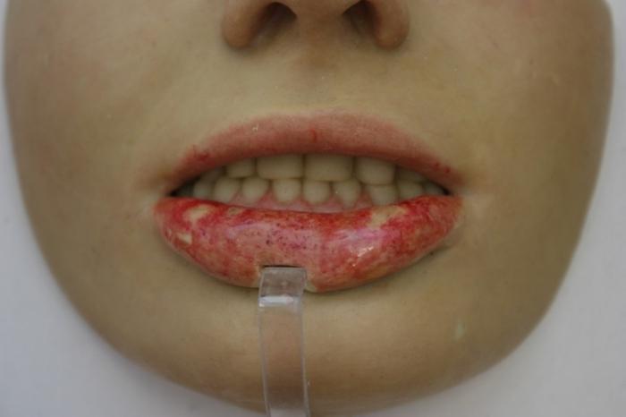 Следы жизнедеятельности бледной трепонемы на губах
