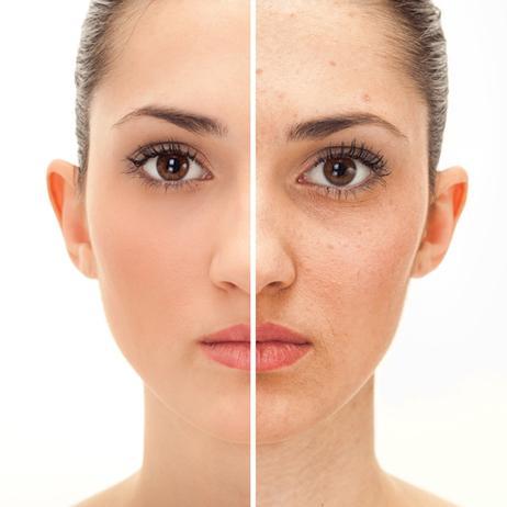 Как выровнять тон кожи лица в домашних