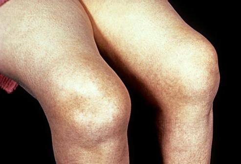 how to treat knee arthritis