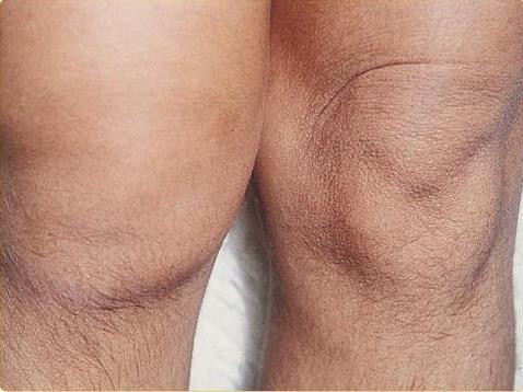 chronic synovitis of the knee
