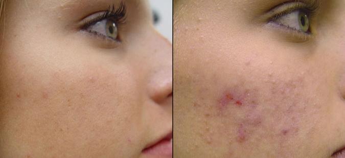 Болтушка для кожи лица