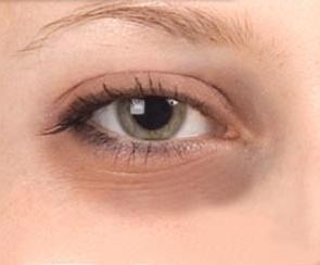 аллергия под глазами чем лечить