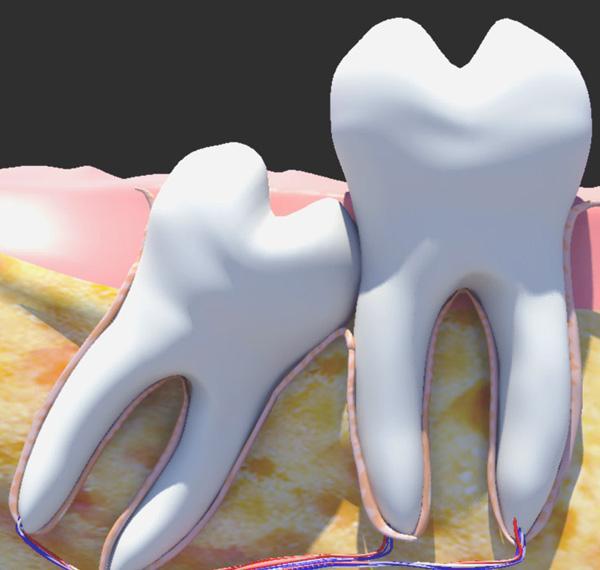 Стоит ли лечить зуб мудрости или удалить