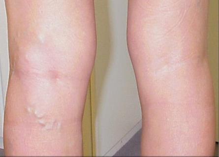 thrombophlebitis symptoms