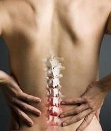 spinal hemangioma
