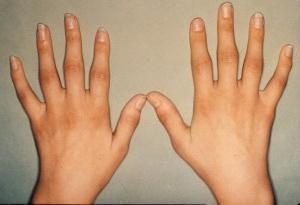 знакомства для больных артритом
