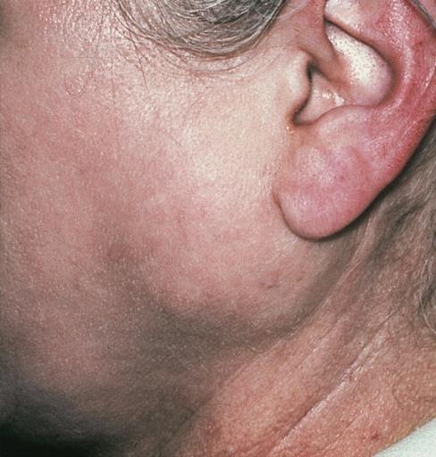 узнать у ребенка сильно опухло около ухо и щека студий