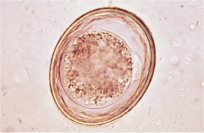 болезни от паразитов в организме человека
