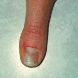 Грибок ногтя признаки симптомы