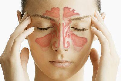 Лечение гайморита в домашних условиях 52