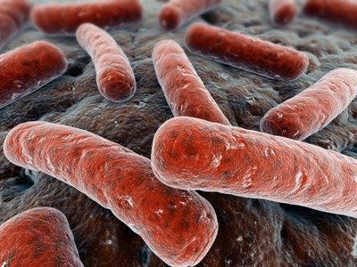 Открыта и закрытая форма туберкулеза