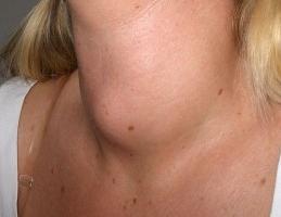 hyperplasia of the thyroid gland