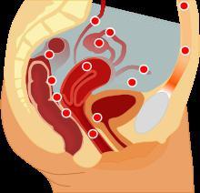 endometriosis treatment duphaston