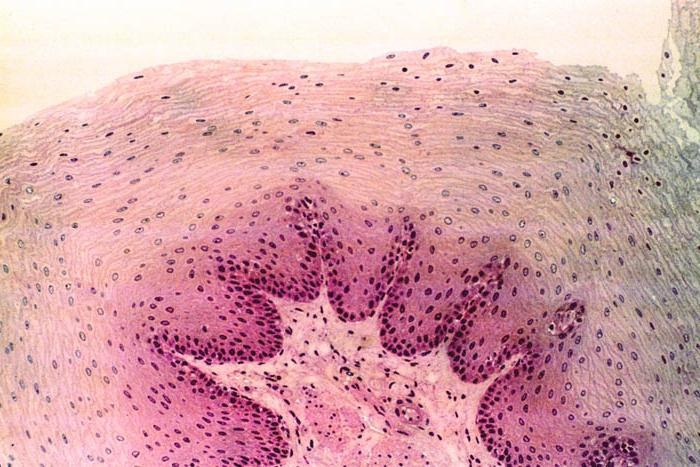 нервная ткань фото под микроскопом