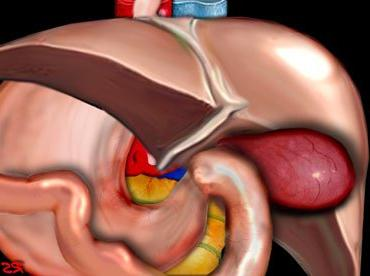 cholecystitis symptoms
