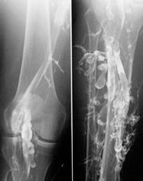 lower limb thrombophlebitis