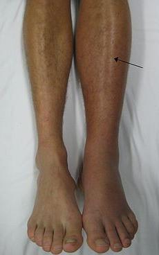 thrombophlebitis of the legs