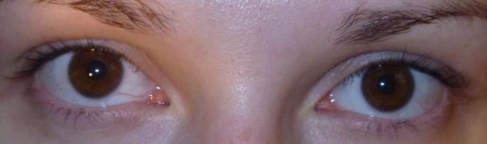 Почему темнеет в глазах когда резко встаёшь