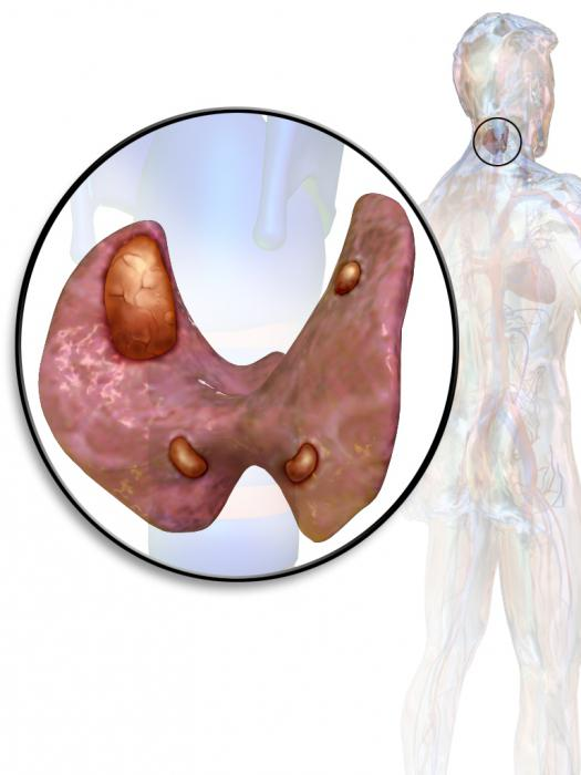 parathyroid hormone elevated