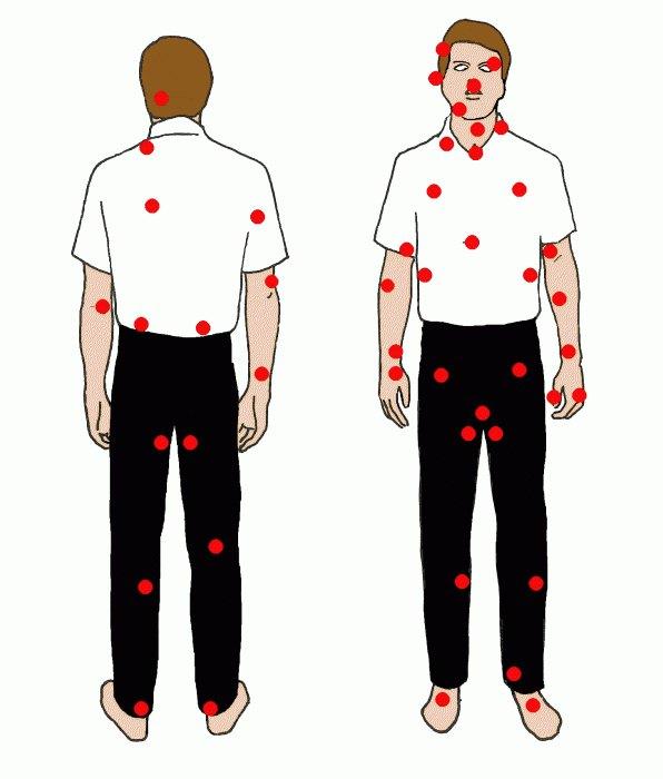 Удар в болевые точки на теле человека