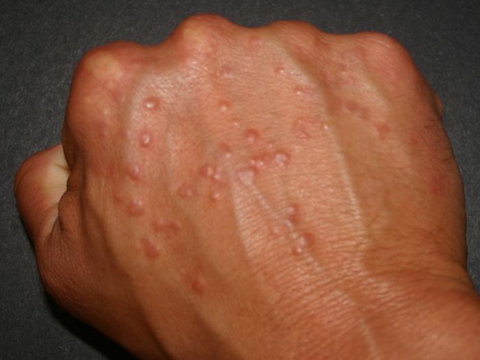 аллергия на руках у беременных