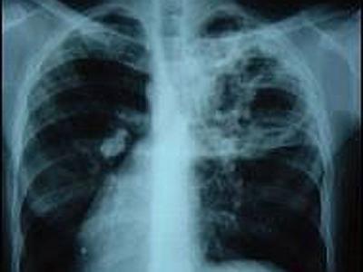 Signs of tuberculosis