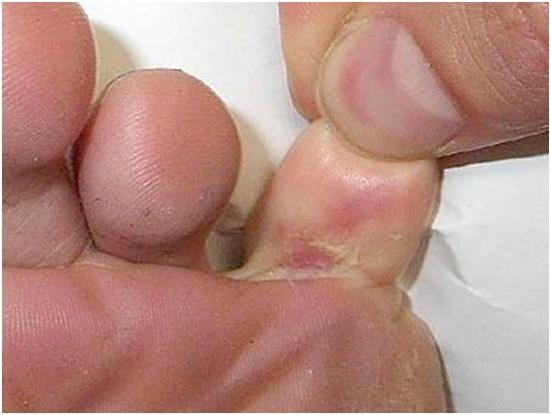 мази противогрибковые для ног