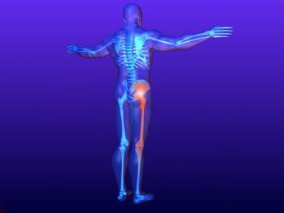 rheumatism joints symptoms