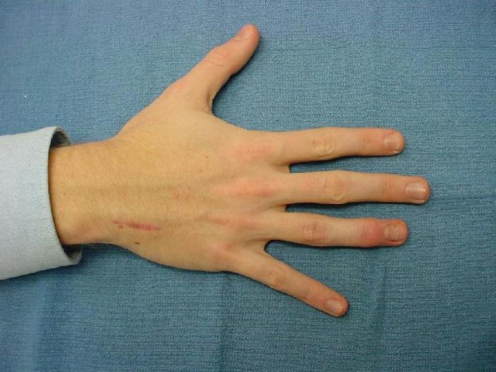 Перелом пальца на руке у ребенка симптомы - Здесь можно посмотреть ...