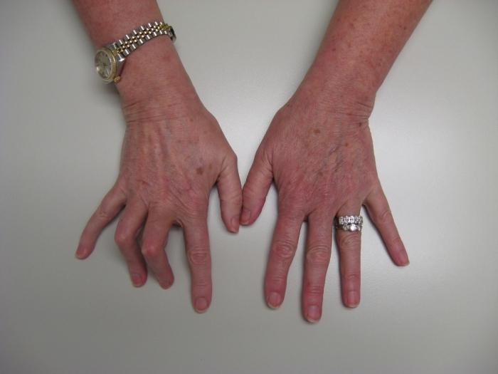 перелом фаланги пальца руки