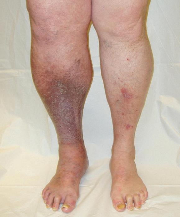 Лечение геморроя и трещин прямой кишки народными средствами