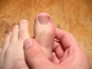 Что такое если ногти облазиют