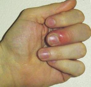 нарывает палец фото