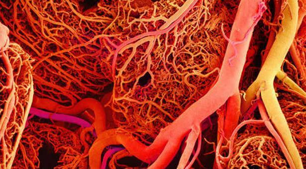 как почистить сосуды от холестерина форум