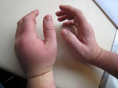 Если у ребенка болит рука