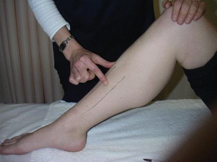 фото ломынх ног да кастейн