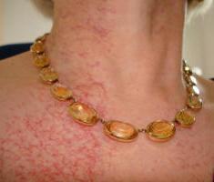 Последствия после лучевой терапии