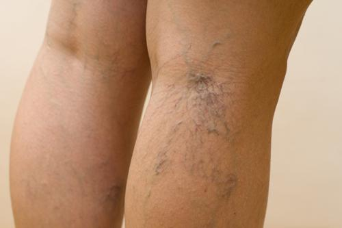 лечение сосудистые звездочки на ногах