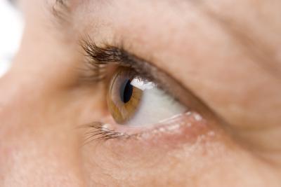 Близорукость выпуклые глаза