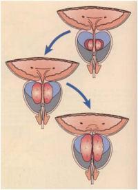 Узи мочевого и предстательной железы как правильно подготовиться