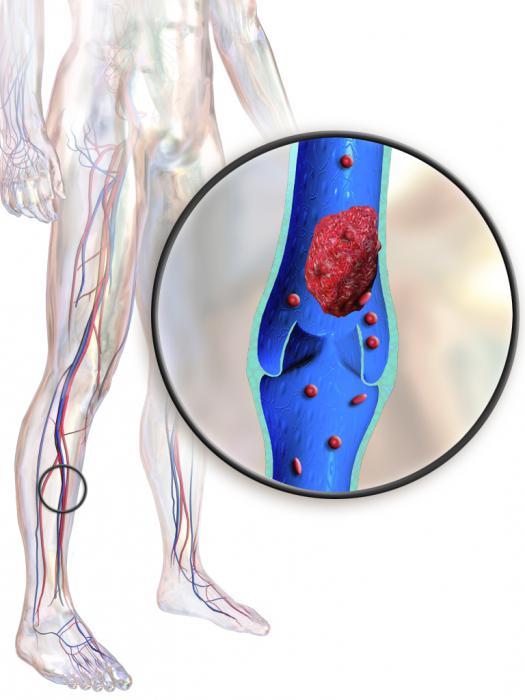 Болит нога сосуды препараты