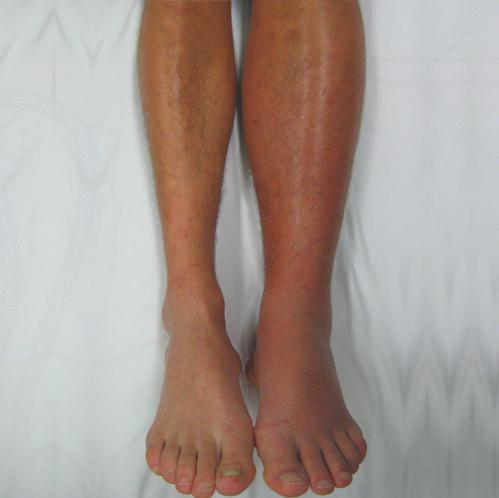 Нарушение венозного кровообращения тромбофлебиты