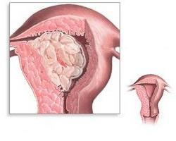 glandular cystic hyperplasia of the endometrium