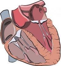 пролапс митрального клапана 1 ст