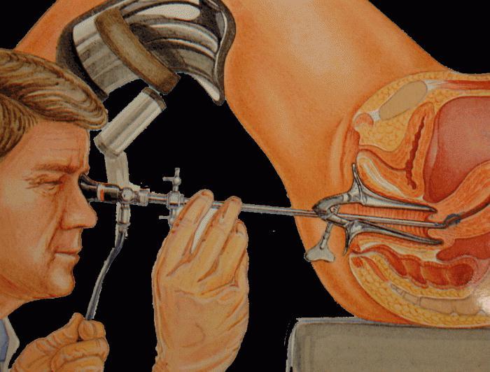 Кольпоскопия после гистероскопии