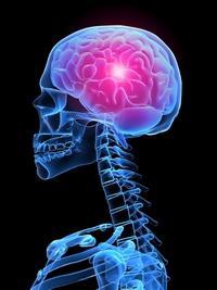 arachnoid cyst of the brain