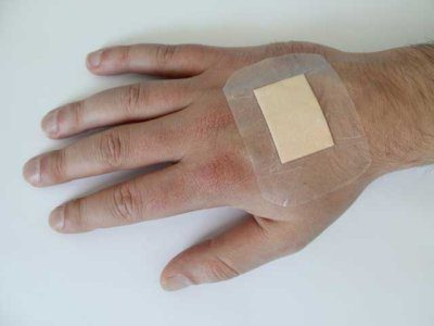 use of ointment for small wounds